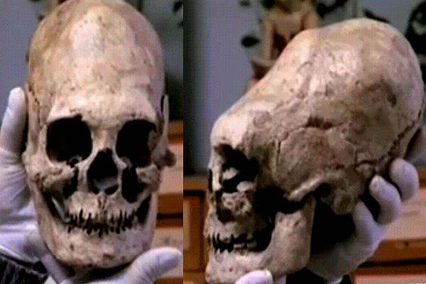 ВКабардино-Балкарии найдены останки людей счерепами вытянутой формы